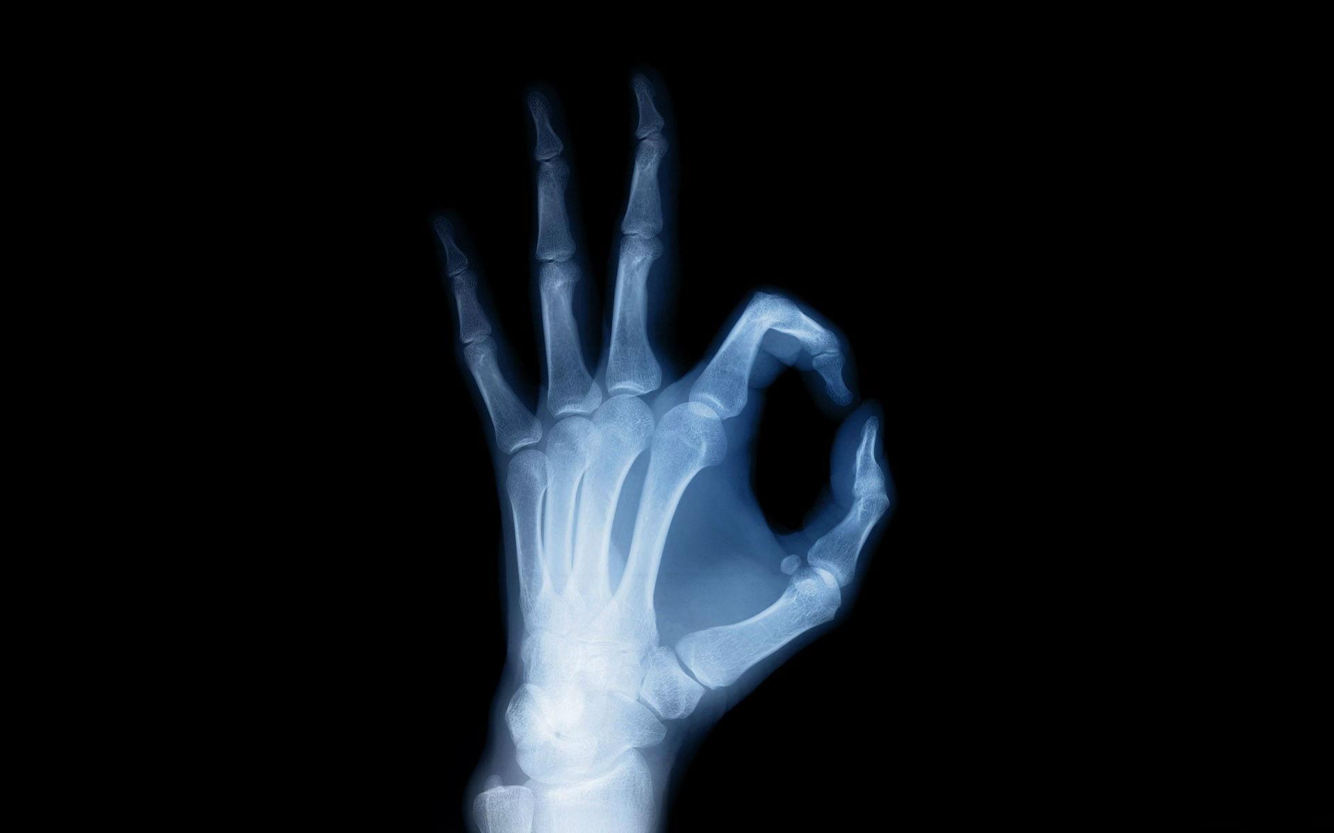 X ray hand anatomy